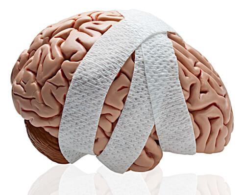 Cerveau avec bandage - Connexion >TCC.QC